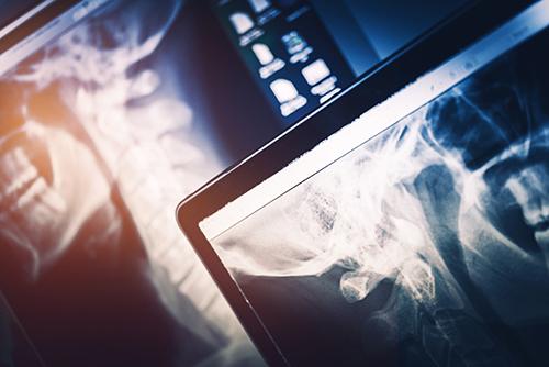 Advances in chiropractic care - Awaken Chiropractic, Gainesville